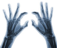 X-ray  hands Stock Images