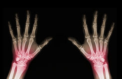 X-ray of hands stock image