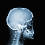 X-ray of head. X-ray of human head and neck stock image