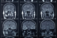 X-ray head and brain, medical exam Stock Photography