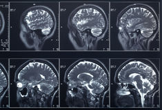 X-ray head and brain Royalty Free Stock Images