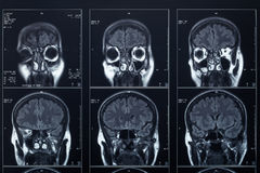 X-ray head and brain radiography Royalty Free Stock Photos