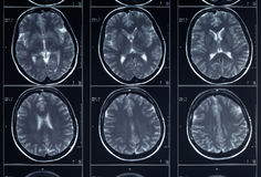 X-ray head and brain radiography Stock Photos