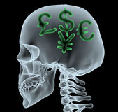 X-ray of a head with currency symbols Stock Photography