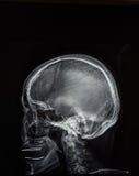 X-ray of head Royalty Free Stock Photos
