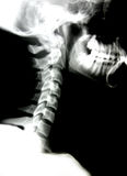 X-ray of head and neck Stock Images