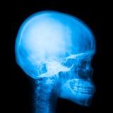 X-ray of head Stock Photo