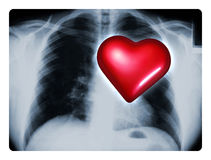 X-Ray Heart. X-ray of a male chest showing one big red heart stock image