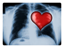 X-ray and Heart. X-ray of a male chest with one illustrated red heart stock photos