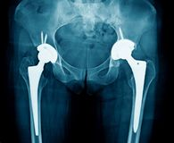Bilateral hip replacement. X-ray hip arthroplasty, hight quality xray image hip replacement royalty free stock photography