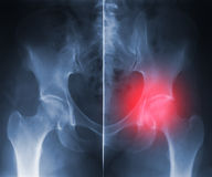X-ray hip trauma. Negative x-ray skiagrames of the human hip and spinal column (front view) with pain source marked by black Royalty Free Stock Image
