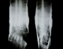X-ray of human arm Royalty Free Stock Image