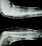 X-ray of human arm. With arm splint royalty free stock photos