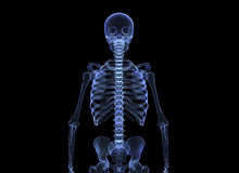 X-ray of the human body Royalty Free Stock Photos