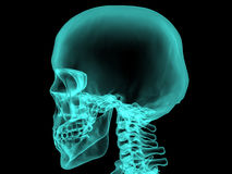 X-ray human bones. №2 Royalty Free Stock Images
