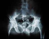 X-ray of a human break hip coxal joint Stock Photo