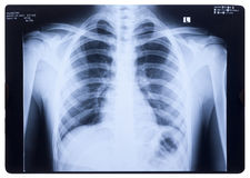 Free X-ray, Human Chest Royalty Free Stock Photos - 33910638