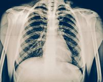 X-ray of a human chest or lungs radiography shot, medical technology and roentgen clinic diagnostic concept. Toned Royalty Free Stock Images