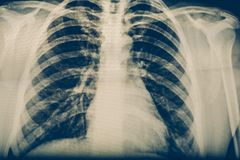X-ray of a human chest or lungs radiography shot, medical technology and roentgen clinic diagnostic concept. Toned Royalty Free Stock Image