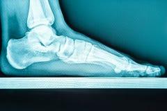 X-ray human foot with flatfoot.  stock photos