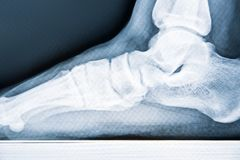 X-ray human foot with flatfoot, close-up.  royalty free stock photography