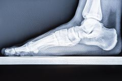 X-ray human foot with flatfoot.  royalty free stock image
