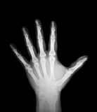 X-ray of human hand Royalty Free Stock Photo