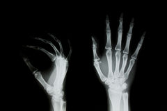 X-ray of human hand. Stock Photo