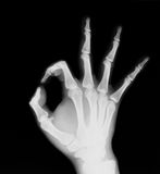 X-ray of human hand (OK!). Detail of human hand x-ray image stock photography