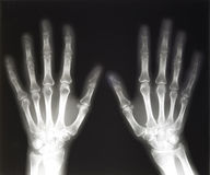 X-ray of human hands Royalty Free Stock Photos