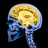 X-ray of a human head Royalty Free Stock Photography