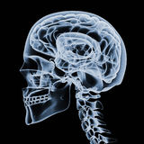 X-ray of a human head Royalty Free Stock Photo