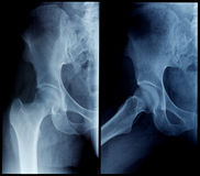 X-Ray human hip. Negative x-ray skiagrames of the human hip (front view Royalty Free Stock Photography