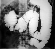 X-ray of the human intestine Royalty Free Stock Photography