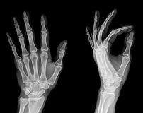 X-Ray. Human Left hand x-ray - Medical Image stock photo