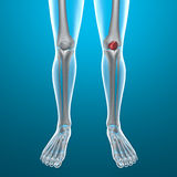 X-ray of human legs, knee Stock Photo