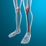 X-ray of human legs, tibia bone Stock Image
