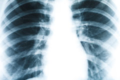 X-ray of human lung closeup. Medicine and health Stock Images