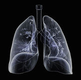 X-Ray of human Lungs Royalty Free Stock Photos
