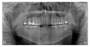 X-ray of Human Mouth with Fillings Stock Photos