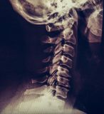 X-ray of human neck, vertebra or spine. Toned stock photos