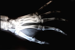 X-ray human photo hand part x Stock Images