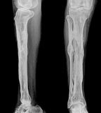 X-ray. Human radiography scan of leg on black royalty free stock images