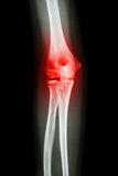 X-ray human's elbow and arthritis (Gout , Rheumatoid) Royalty Free Stock Image