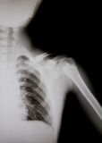 X-ray of human shoulder (broken shoulder) Stock Photo