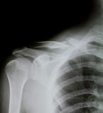 X-ray of human shoulder (broken shoulder) Royalty Free Stock Photos