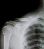 X-ray of human shoulder (broken shoulder). Detail of x-ray image : human shoulder (broken shoulder royalty free stock photos