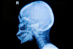 X-ray human  of skull and cervical  spine. Isolate Royalty Free Stock Photo