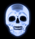 X-ray Human Skull Royalty Free Stock Photo