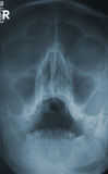 X-ray human skull Royalty Free Stock Photos